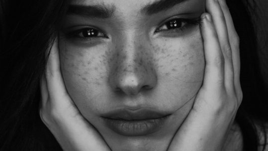 Botox Treatment for Acne